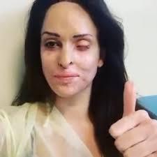 Sfregiata dall'acido, Gessica Notaro in ospedale mostra in ...