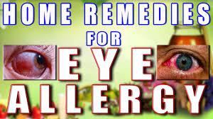 Home Remedies for Eye Allergy II आँखों की एलर्जी का ...