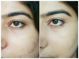 mac concealer before and after. l : before concealer application r after (no foundation applied) mac and