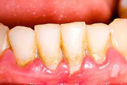 Zahnstein entfernen kosten