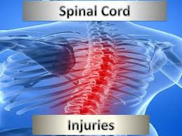 referat spinal cord injury documents sep 20 2017
