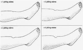 1 2 3 Edema Rating Scale General Nursing Allnurses