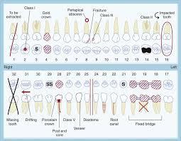 Dental Charting Symbols List Dental Chart Template Bedowntowndaytona Com