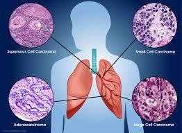 smoking causes lung cancer essay << term paper academic writing smoking causes lung cancer essay
