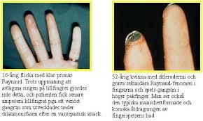 Sockerdricka i händer och fötter