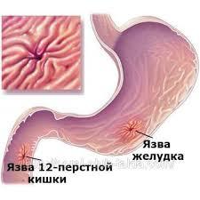 Есть мм Язвенная болезнь язва желудка и двенадцатиперстной кишки