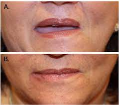 fillers in lip reconstruction