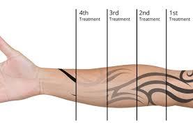 Fade Chart Treatment Fade Chart