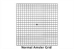 Download Your Free Amsler Grid Specialty Eye Institute