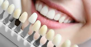 Tooth colour chart images stock photos vectors shutterstock. 50 Shades Of White How To Choose The Right Shade For Teeth Whitening