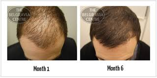 Male Pattern Baldness Cure Beauteous What Is Male Pattern Baldness