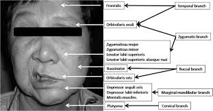 Webmedcentral Com A Systemic Approach To Facial Nerve
