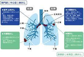 原発 性 肺癌
