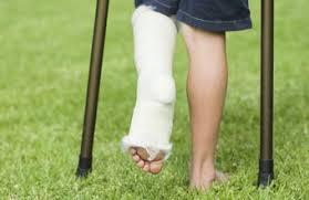 Znalezione obrazy dla zapytania break a leg
