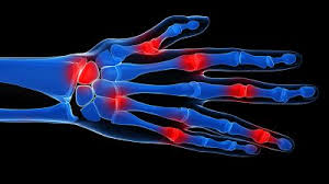 after surgery natural pain relief
