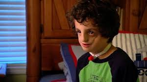 meet a brave little boy with treacher collins syndrome an inherited deformity of the face a real life auggie national geographic channel