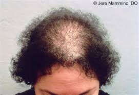 Female Pattern Hair Loss Magnificent Female Pattern Hair Loss American Osteopathic College Of