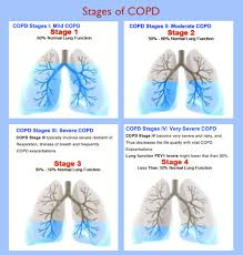 Copd Life Expectancy Chart Understanding The 4 Stages Of Copd