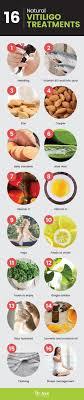 15 Best Mami Images Vitiligo Treatment The Cure Vitiligo