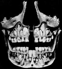 <b>Молочные</b> зубы — Википедия