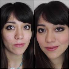 picture of s o s cover pimples with makeup