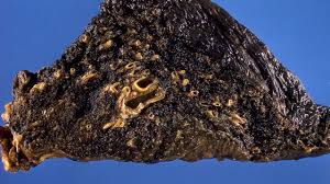 Image result for Coal disease
