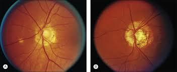 Ocular Histoplasmosis An Overview Sciencedirect Topics