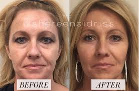 beforeandafter image of woman after receiving fillers