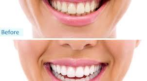 full size of teeth bleaching best teeth whitening bleach zoom teeth whitening stunning best teeth
