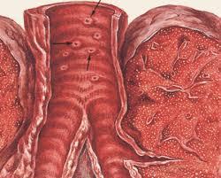 Туберкулез трахеи и бронхов Для обнаружения туберкулеза трахеи и бронхов самым эффективным методом является трахеобронхоскопия