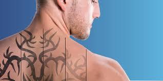 лазерное удаление татуировки что стоит знать прежде чем решиться