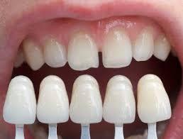 How Long Do Porcelain Veneers Last Wilkinson Dental