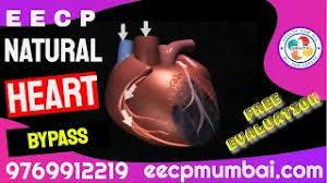 However, it is necessary for the individual to first have a good look at the insurance coverage and check with the representatives to make double sure that this particular procedure is covered under their existing plan. Eecp Treatment For Heart Failure In Post Cabg Bypass Surgery