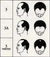 Norwood Hamilton Scale How To Measure Your Hair Loss His