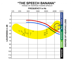 Hearing Banana Chart I Can Hear Ok Just Some Words Arent Clear