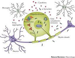 multiple system atrophy insights into