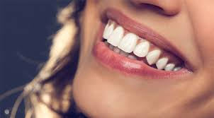 The 8 Dos And Donts Of Getting A Hollywood Smile