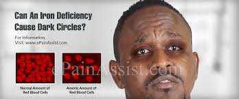 can an iron deficiency cause dark
