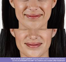 botox fillers kybella cosmetic