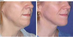 Laser skin tightening neck