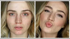 makeup to cover acne redness