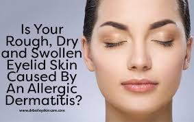 Is Your Rough, Dry and Swollen Eyelid Caused By An Eyelid Dermatitis?