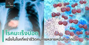 โรคมะเร็งปอด (Lung cancer)   HD สุขภาพดี เริ่มต้นที่นี่