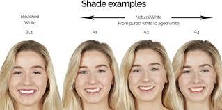 Instasmile Color Chart Veneer Shade Bl1 Related Keywords Suggestions Veneer