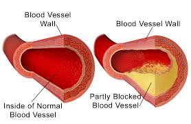 Cholesterol Heart Stroke Foundation South Africa Heart