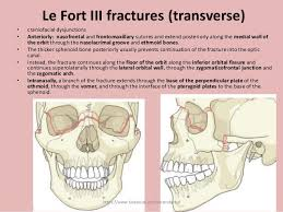 Le Fort Fracture Maxillary Fracture