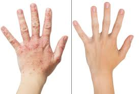 Natural Psoriasis Treatment How Pemf Therapy Can Help