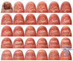 Как лечить грибок на ногте у ребенка 48