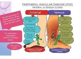 Venous Vs Arterial Insufficiency Chart Clinical Manifestations Of Pvd Graphic Showing Arterial Vs