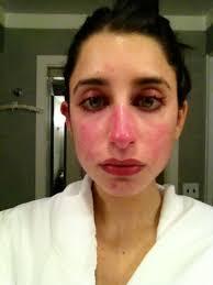 best makeup for rosacea photo 1